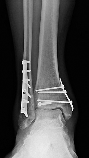 X-ray image of surgical plates and screws to treat a trimalleolar fracture
