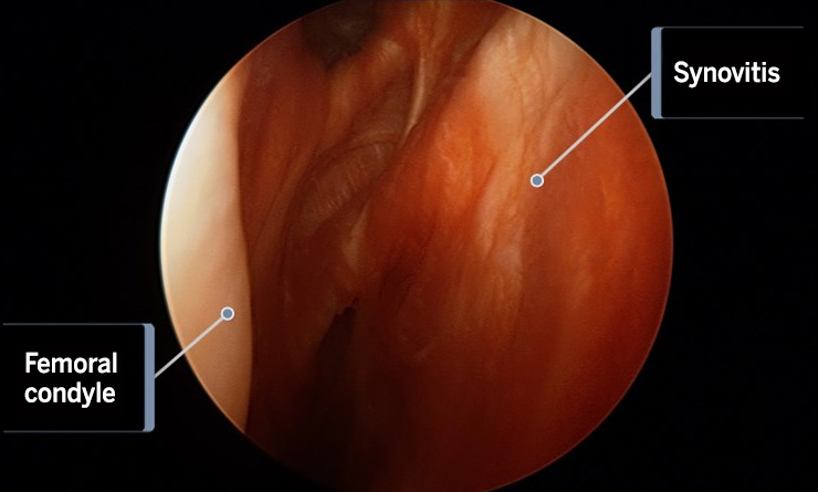 Image: arthroscopic camera view of the synovitis in the inside of the knee joint.