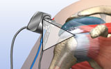 View partially torn rotator cuff animation