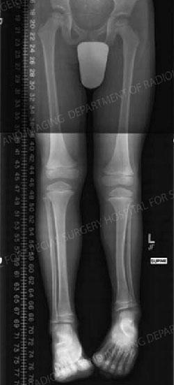 Limb Length Discrepancies in the Pediatric Patient - HSS.edu - HSS