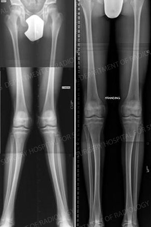 X-ray images of knock knees and then straightened legs after corrective osteotomy.