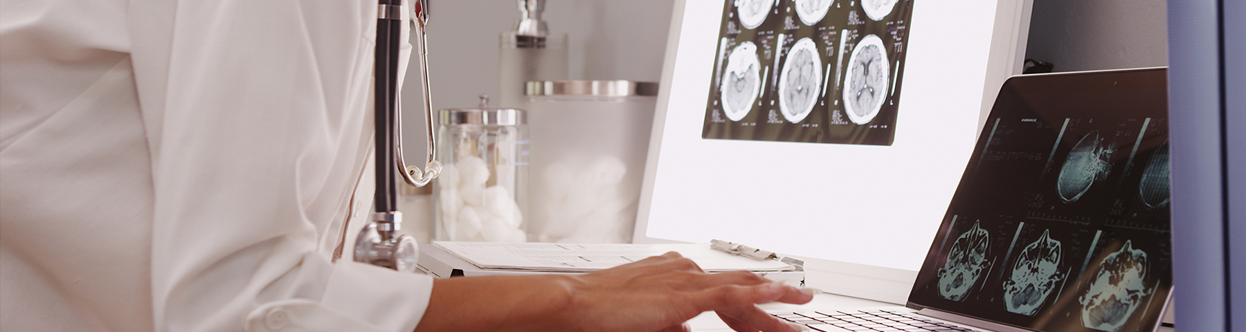 Banner image of a physician reviewing brain scans
