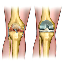 Illustration of degenerative arthritis of the knee and knee replacement surgery
