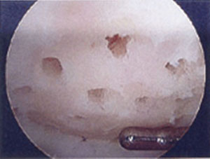 Image - arthroscopic view showing articular cartilage surface following microfracture