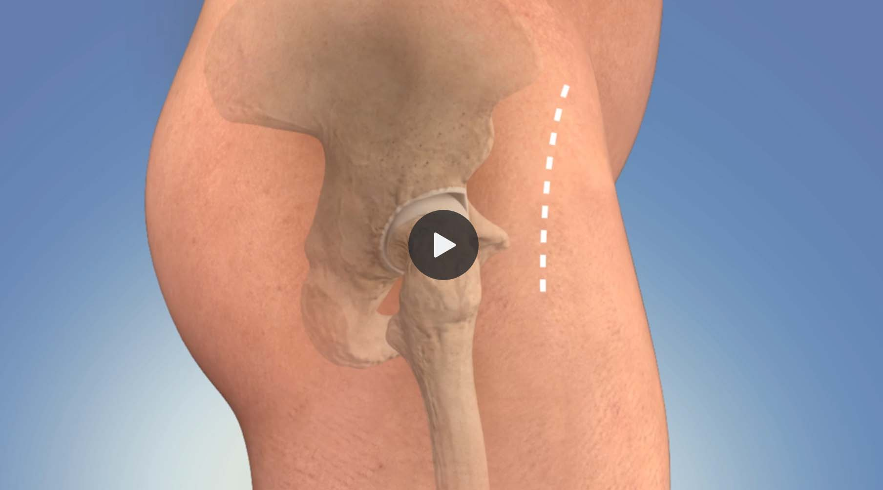 Animation: Hip Replacement - Anterior Approach