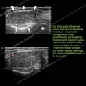 Ultrasound of the Month Case 72