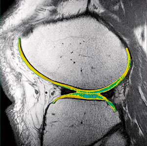 Lateral view of the knee using T2 mapping.