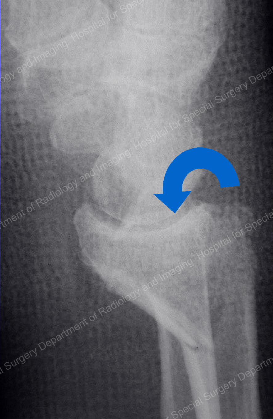 X-ray image of Smith (volar) fracture