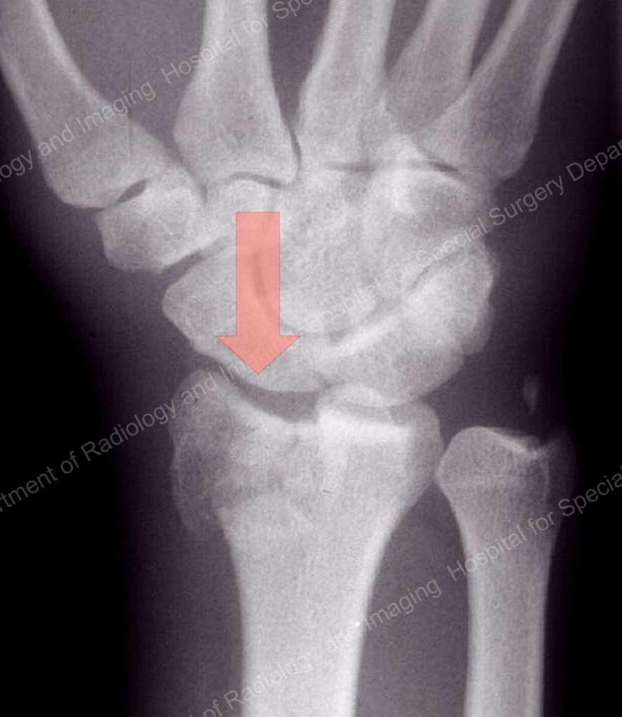X-ray image showing a compression fracture of the distal radius