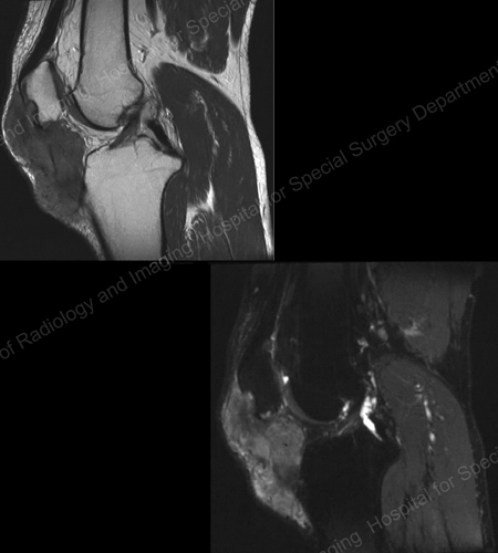 A MRI of the knee showing gouty soft tissue mass and erosion of the kneecap from an article written by Theodore R. Fields, MD, FACP from Hospital for Special Surgery