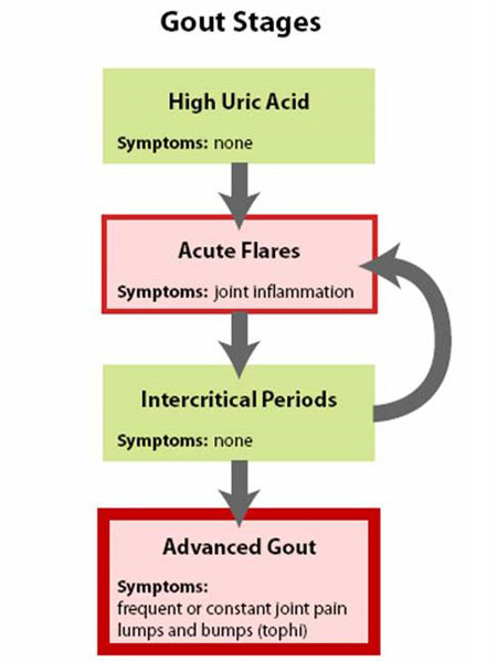 for excess uric acid quizlet lowering uric acid through diet gout bladder pain