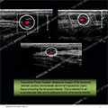 Ultrasound of the Month Case 44