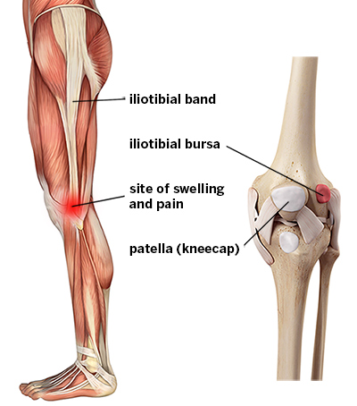 iliotibial band syndrome - hss, Human Body