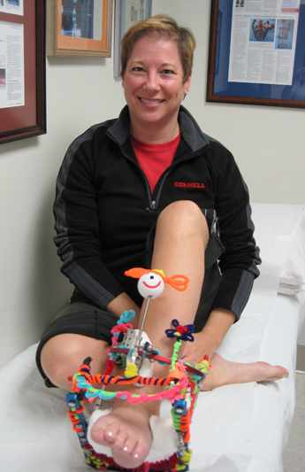 Nancy and her decorated leg fixator