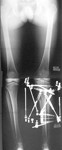 Luis, Follow up thumbnail of an x-ray, Limb Lengthening, osteotomy proximal tibia, ilizarov taylor spatial frame, deformity correction, arthritis prevention