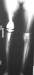 Colleen, Follow up thumbnail of an x-ray, Limb Lengthening, knee replacement, leg length discrepancy corrected, removal of irradiated bone