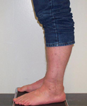 Richard, Follow up thumbnail image, Limb Lengthening, ankle fusion, ankle arthrodesis, mobility, pain relief
