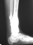 Maria, Follow up thumbnail of an x-ray, Limb Lengthening, repair of tibia nonunion, correction of deformity, returned to active schedule