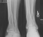 Juan, Pre-op thumbnail of an X-ray, Limb Lengthening, Distal Tibia fracture, compartment syndrome