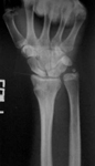 Eve, Pre-op thumbnail of an x-ray, Limb Lengthening, Wrist Deformity, Injured Growth Plate