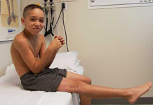 Jacob, Follow up thumbnail of an x-ray, Limb Lengthening, gradual leg lengthening, pediatric, leg lengthen correction