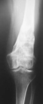 Nancy, Follow up thumbnail of an x-ray, Limb Lengthening, deformity corrected, weightbearing exercise, arthritis prevention, pain relieved