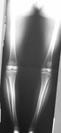 Brenda, Pre-op thumbnail of an x-ray, Limb Lengthening, bowleg alignment, genu valrum