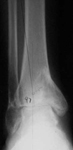 Claudia, Pre-op thumbnail of an x-ray, Limb Lengthening, Ankle Distraction, post-traumatic arthritis, varus deformity