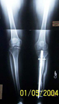 Marcelle, Follow up thumbnail of an x-ray, Limb Lengthening, tibia healed, Bone Transport