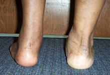 Dale, Follow up thumbnail Image, Limb Lengthening, Correction of Clubfoot, plantigrade