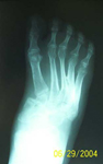 Dale, Follow up thumbnail of an x-ray, Limb Lengthening, Correction of Clubfoot, plantigrade
