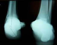 Dale, Pre-op thumbnail of an x-ray, Limb Lengthening, Clubfoot, complex foot deformity