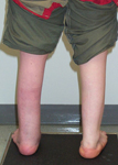Nicole, Follow up thumbnail image, Limb Lengthening, sacral agnesis, foot deformity corrected, bone healed