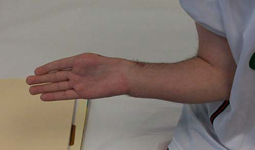 Petar, Follow up thumbnail Image, Limb Lengthening, wrist deformity correction, wrist/forearm lengthened