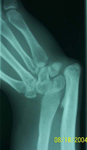 Petar, Pre-op thumbnail of an X-ray, Limb Lengthening, Radial Clubhand, Wrist/Forearm Derformity