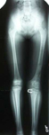 Jocelyn, Follow up thumbnail of an x-ray, Limb Lengthening, Pediatric, femur lengthened