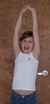 Taylor, Follow up thumbnail image, Limb Lengthening, Pediatric, Humerus lengthened, full mobility, deformity corrected