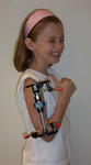 Taylor, Post-Op thumbnail Image, Limb Lengthening, Gradual Lengthening, EBI MAC Frame, humerus deformity correction, pediatric