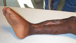 Lansana, Pre-Op thumbnail Image, Limb Lengthening, Limb Salvage, tibial bone defect