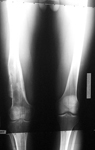 Sean, Follow up thumbnail of an x-ray, limb lengthening, deformity corrected, leg lengthened, correction of femur malunion