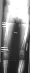 Sean, Post-op thumbnail of an x-ray, limb lengthening, osteotomy, femur osteotomy, monolateral frame, gradual lengthening