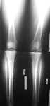 Andrew, Pre-Op thumbnail of an x-ray, Valgus Deformity, Knock Knee, Limb Lengthening