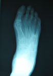 Don, Follow up thumbnail of an x-ray, Limb Lengthening, Foot Deformity Corrected, walking has greatly improved