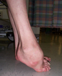 Don, Pre-op thumbnail Image, Limb Lengthening, Foot Deformity Correction, Charcot-Marie-Tooth Disease