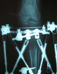 Natalie, Post Op thumbnail of an x-ray, Limb Lengthening, repaired nonunion, Tibia lengthened