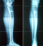 Graham, Follow up thumbnail of an x-ray image, Limb Lengthening, ankle and lengthening fully healed