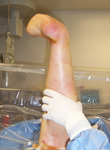 Claire, Pre Op thumbnail Images, Limb Lengthening, foot and ankle deformity, neuropathy