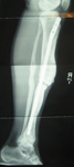 Ian, Follow up thumbnail of an x-ray Image, limb lengthening, rod inserted to support new bone