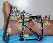 Dino, Post-op thumbnail Image, Limb Lengthening, tibia and fibula osteotomies with TSF