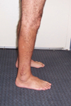 Dino, Post-op thumbnail Image, Limb Lengthening, deformity correction and distraction